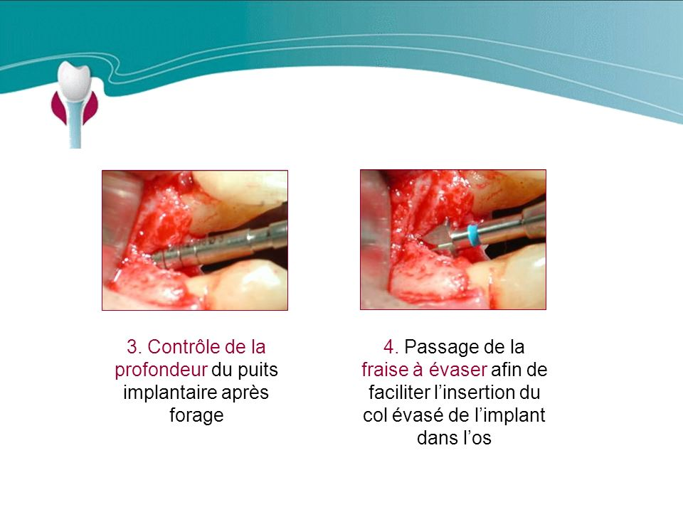 3. Contrôle de la profondeur du puits implantaire après forage
