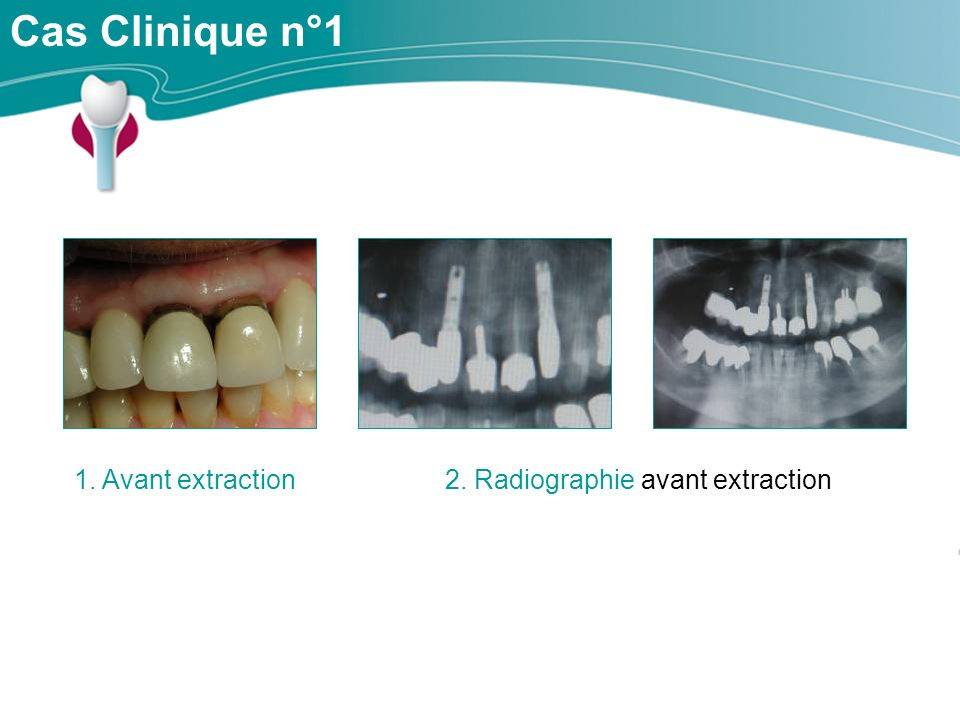 2. Radiographie avant extraction
