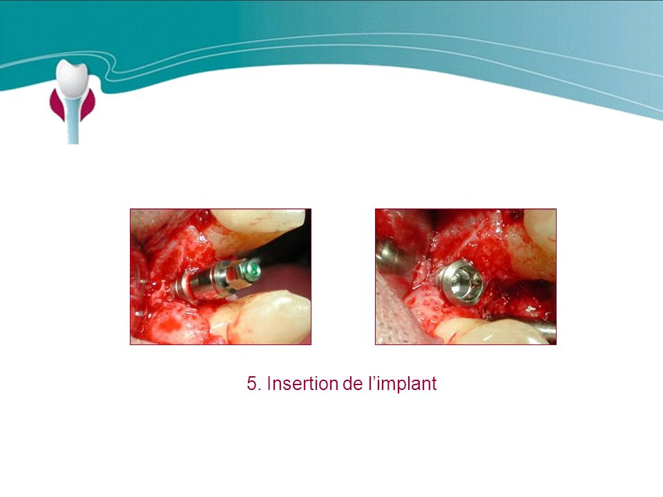 5. Insertion de l'implant