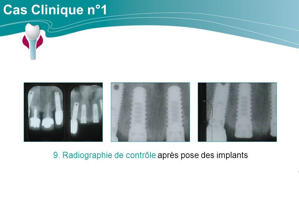 9. Radiographie de contrôle après pose des implants