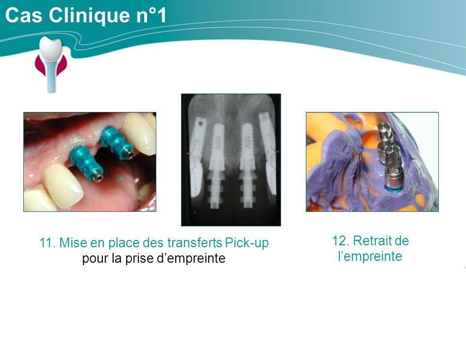 Cas Clinique n°1 12. Retrait de l'empreinte