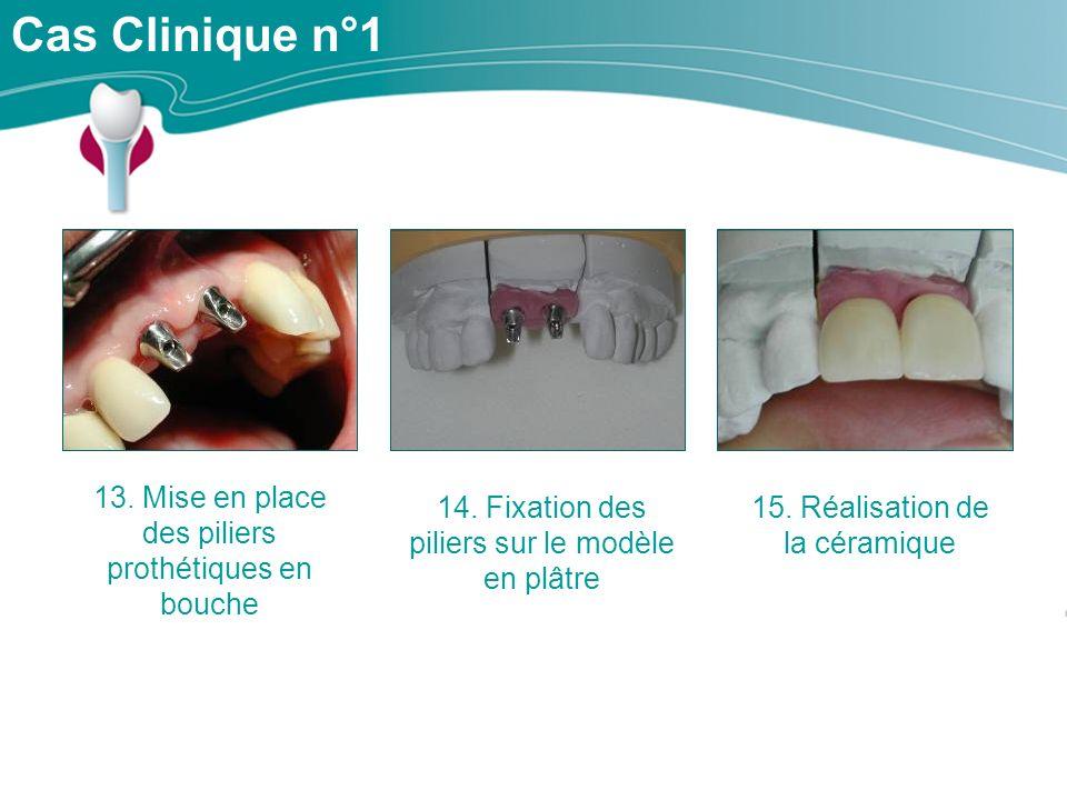 Cas Clinique n°1 13. Mise en place des piliers prothétiques en bouche