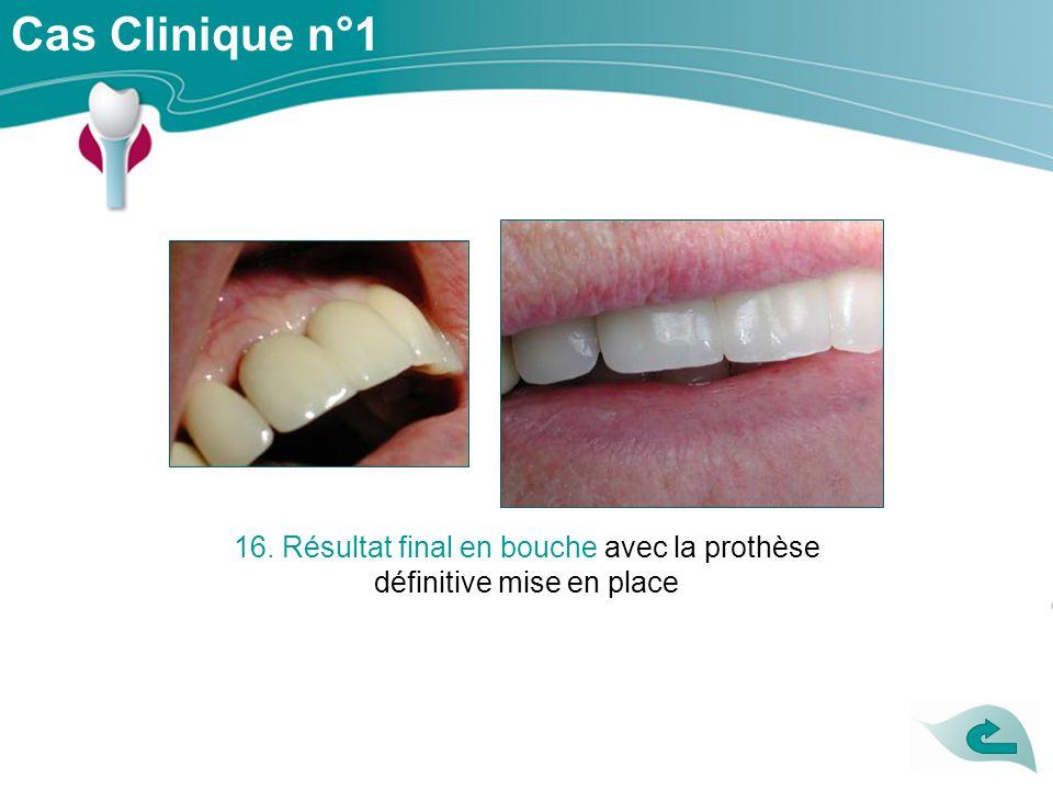 16. Résultat final en bouche avec la prothèse définitive mise en place