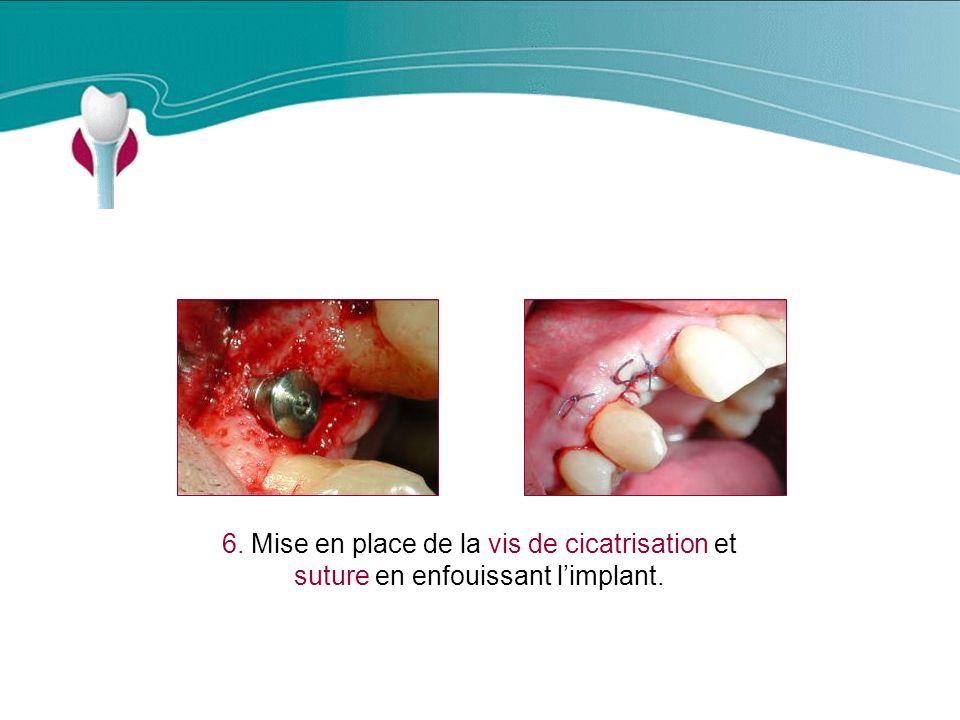 Cas Clinique n°3 6. Mise en place de la vis de cicatrisation et suture en enfouissant l'implant.