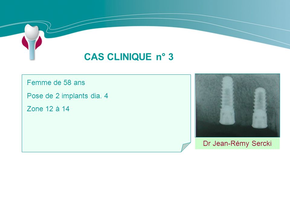 CAS CLINIQUE n° 3 Femme de 58 ans Pose de 2 implants dia. 4
