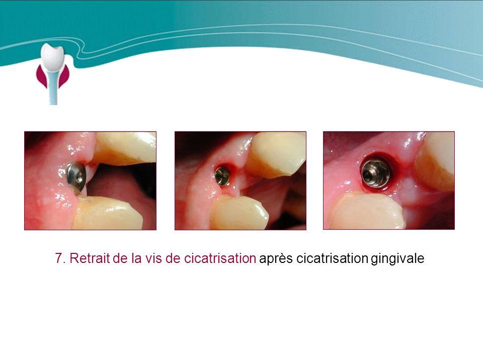 7. Retrait de la vis de cicatrisation après cicatrisation gingivale