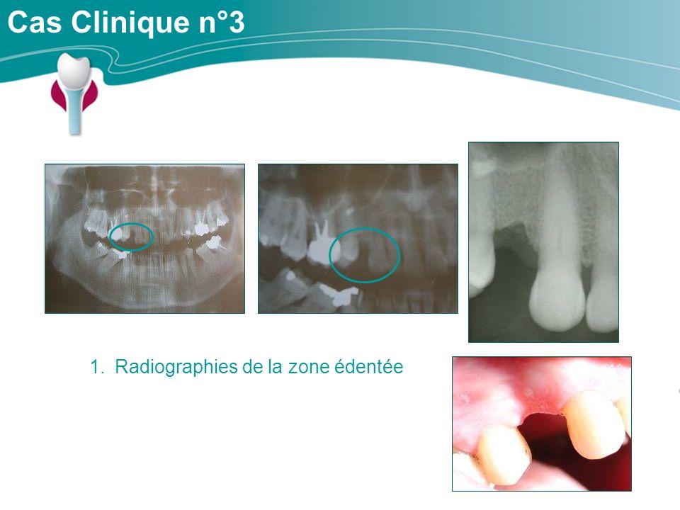 Radiographies de la zone édentée
