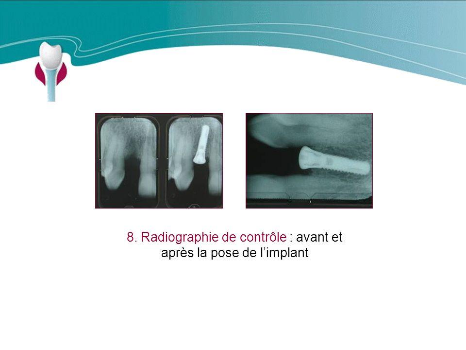 8. Radiographie de contrôle : avant et après la pose de l'implant