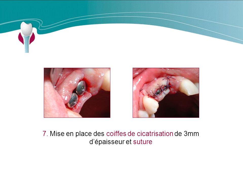 Cas Clinique n°4 7. Mise en place des coiffes de cicatrisation de 3mm d'épaisseur et suture