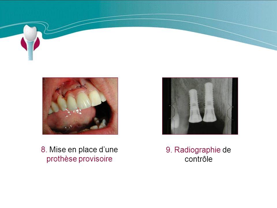 Cas Clinique n°4 8. Mise en place d'une prothèse provisoire