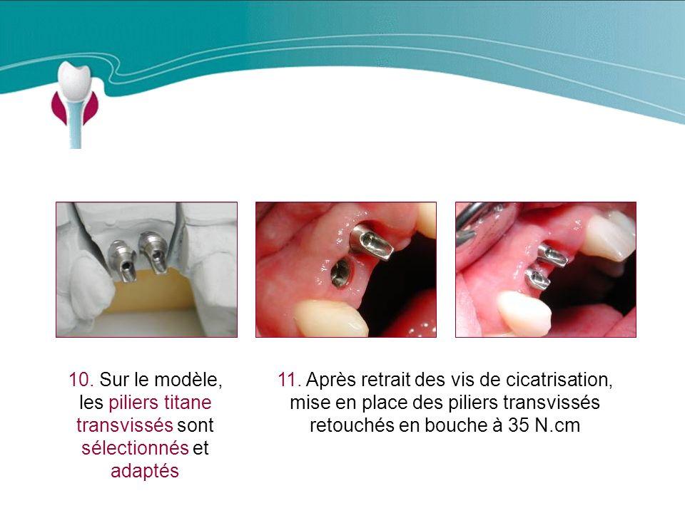 Cas Clinique n°4 10. Sur le modèle, les piliers titane transvissés sont sélectionnés et adaptés.