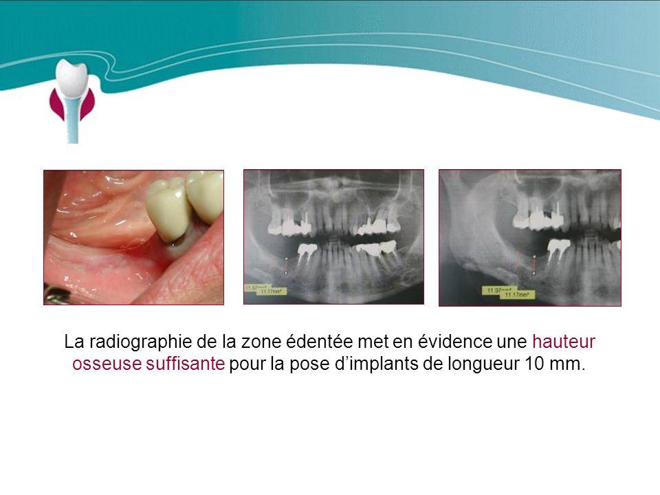 Cas Clinique n°5 La radiographie de la zone édentée met en évidence une hauteur osseuse suffisante pour la pose d'implants de longueur 10 mm.
