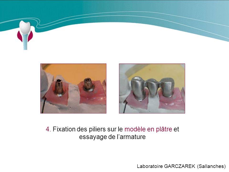 Cas Clinique n°6 4. Fixation des piliers sur le modèle en plâtre et essayage de l'armature.