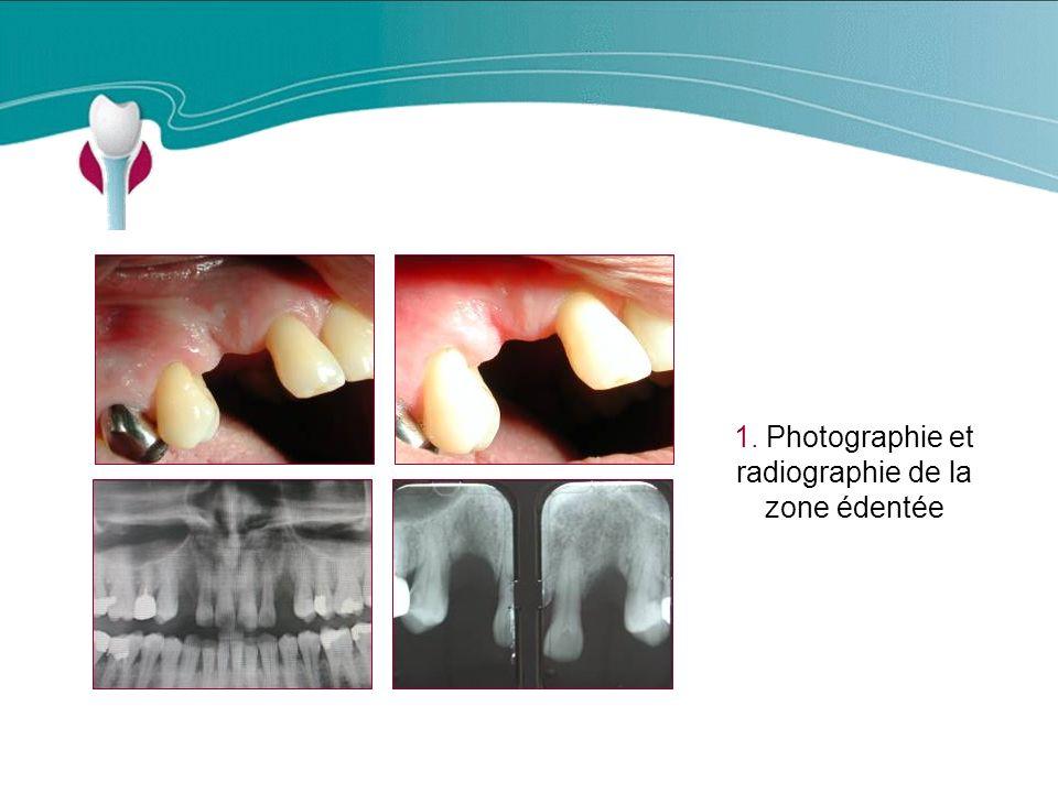 1. Photographie et radiographie de la zone édentée