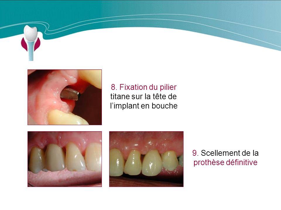 Cas Clinique n°7 8. Fixation du pilier titane sur la tête de l'implant en bouche.