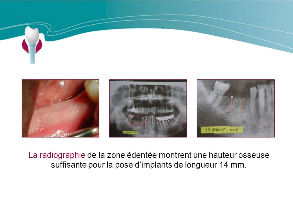 Cas Clinique n°8 La radiographie de la zone édentée montrent une hauteur osseuse suffisante pour la pose d'implants de longueur 14 mm.