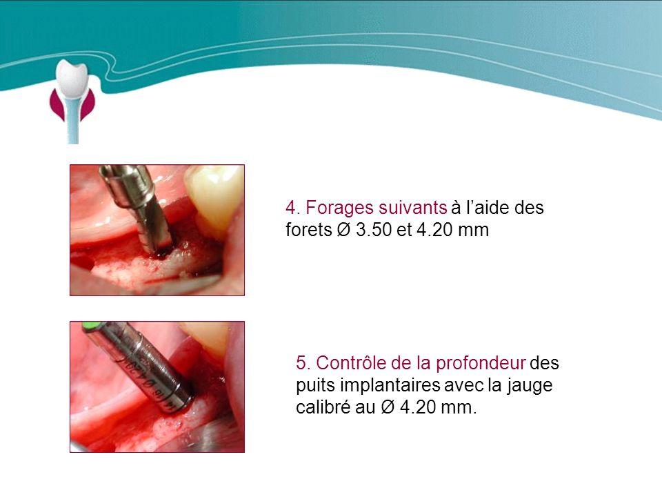 Cas Clinique n°8 4. Forages suivants à l'aide des forets Ø 3.50 et 4.20 mm.