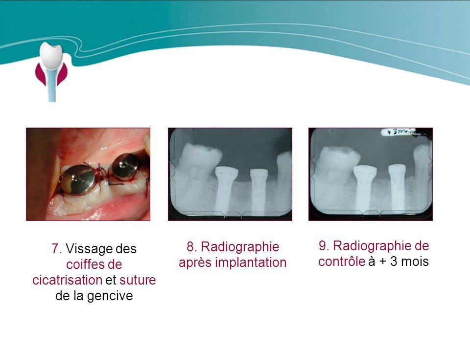 Cas Clinique n°8 8. Radiographie après implantation