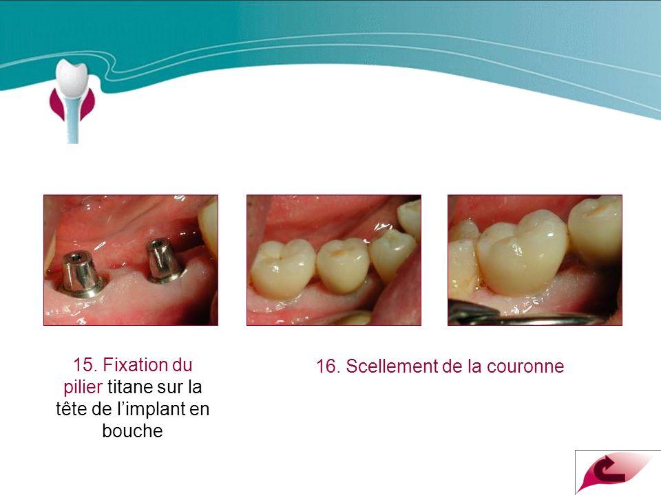 Cas Clinique n°8 15. Fixation du pilier titane sur la tête de l'implant en bouche.