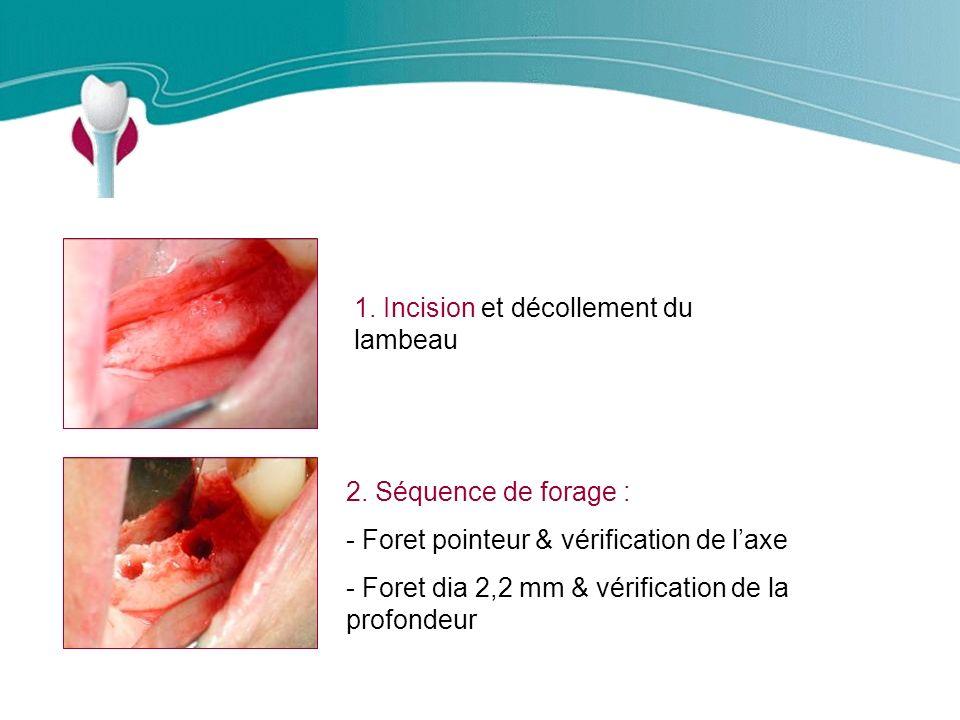 Cas Clinique n°9 1. Incision et décollement du lambeau
