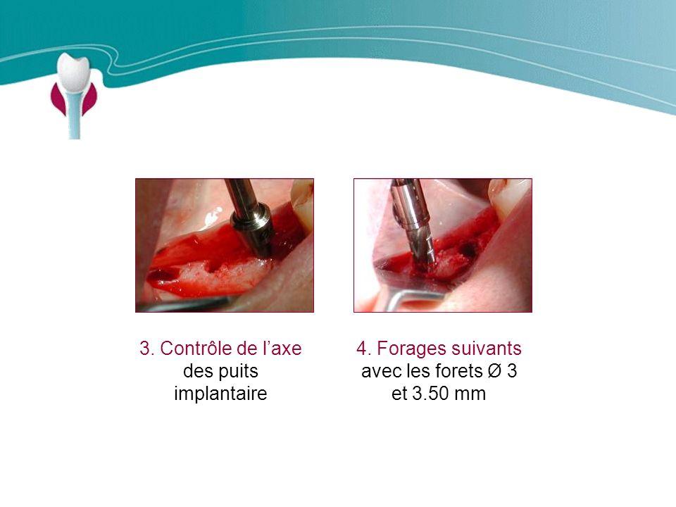 Cas Clinique n°9 3. Contrôle de l'axe des puits implantaire