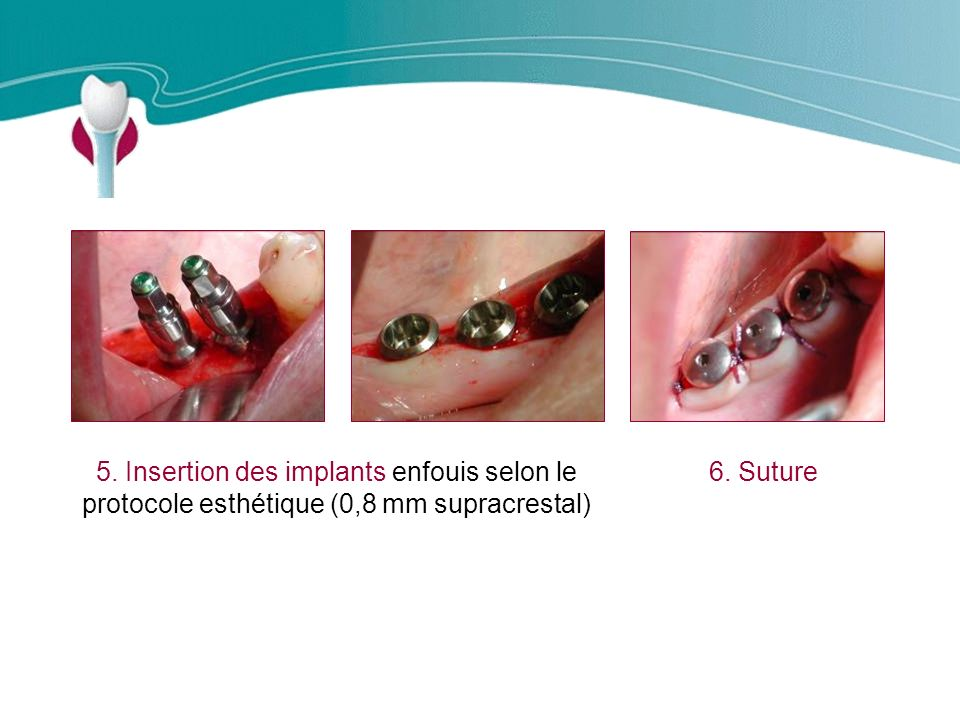 Cas Clinique n°9 5. Insertion des implants enfouis selon le protocole esthétique (0,8 mm supracrestal)
