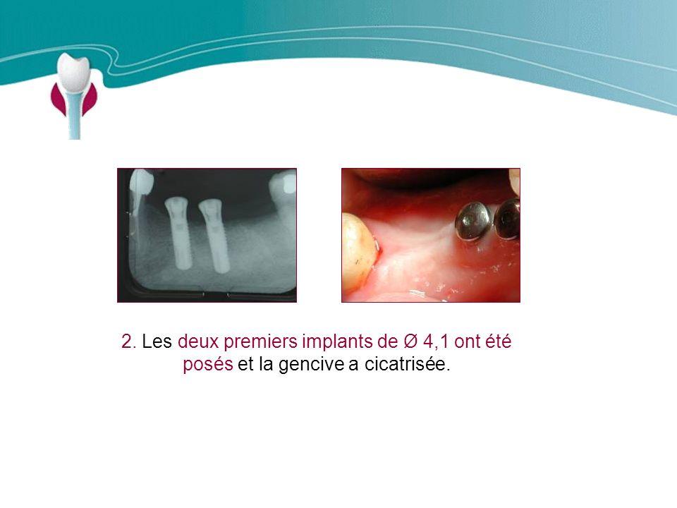 Cas Clinique n°10 2. Les deux premiers implants de Ø 4,1 ont été posés et la gencive a cicatrisée.