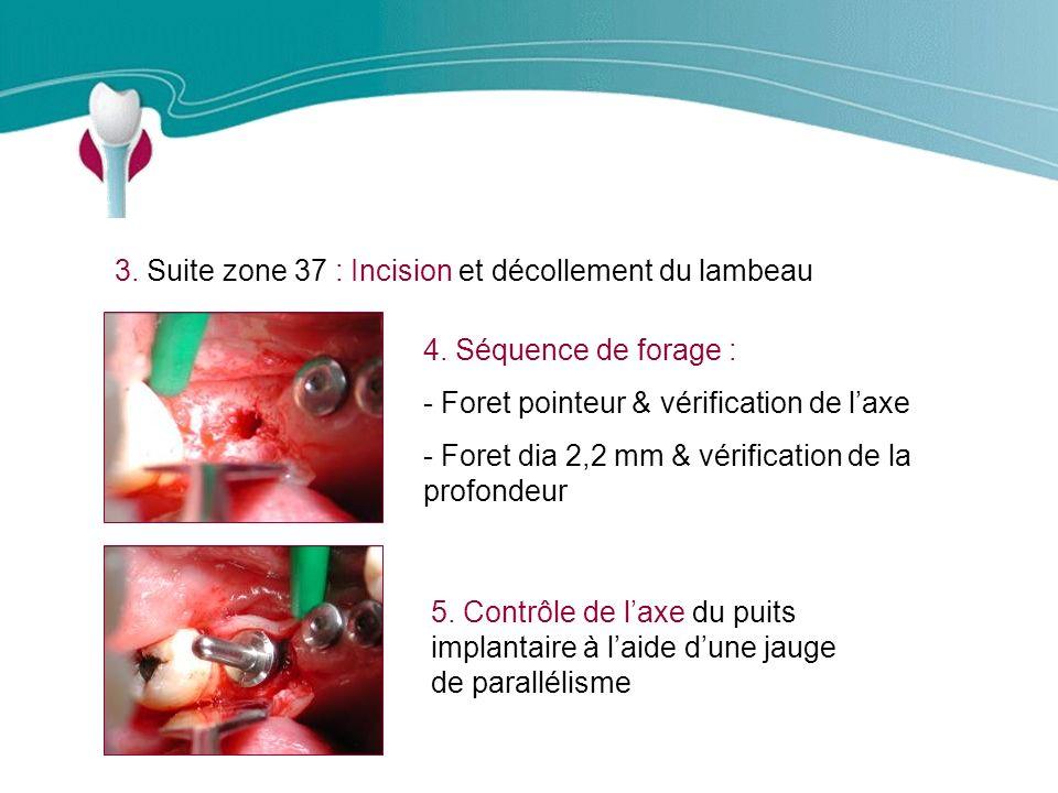 Cas Clinique n°10 3. Suite zone 37 : Incision et décollement du lambeau. 4. Séquence de forage : Foret pointeur & vérification de l'axe.