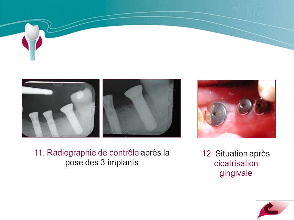 Cas Clinique n°10 11. Radiographie de contrôle après la pose des 3 implants.