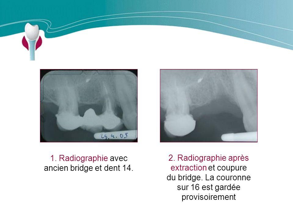 1. Radiographie avec ancien bridge et dent 14.