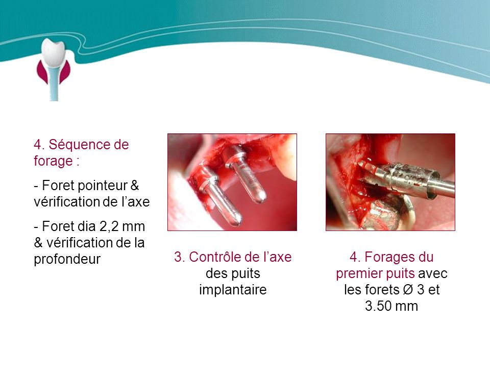 Cas Clinique n°11 4. Séquence de forage :