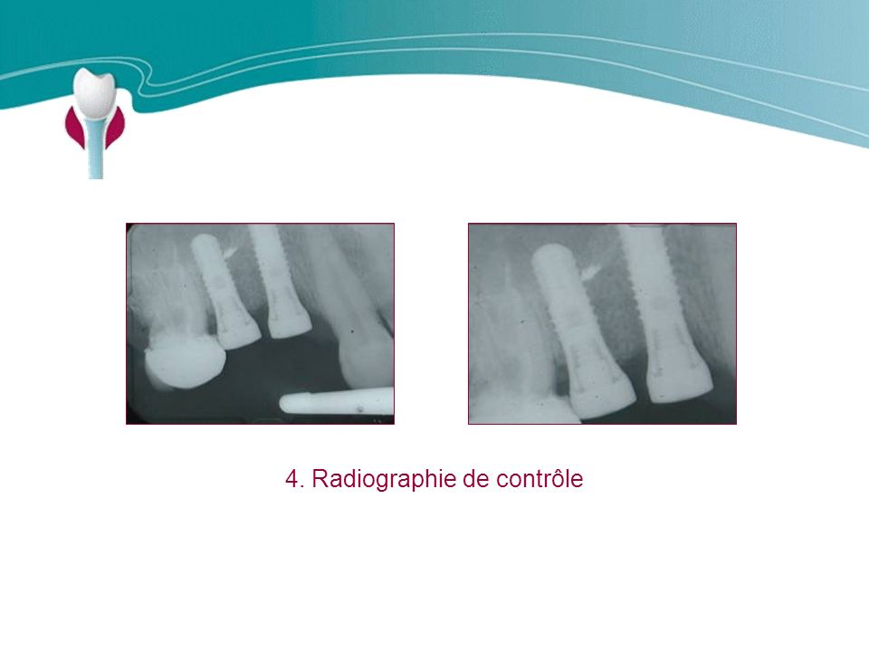 4. Radiographie de contrôle