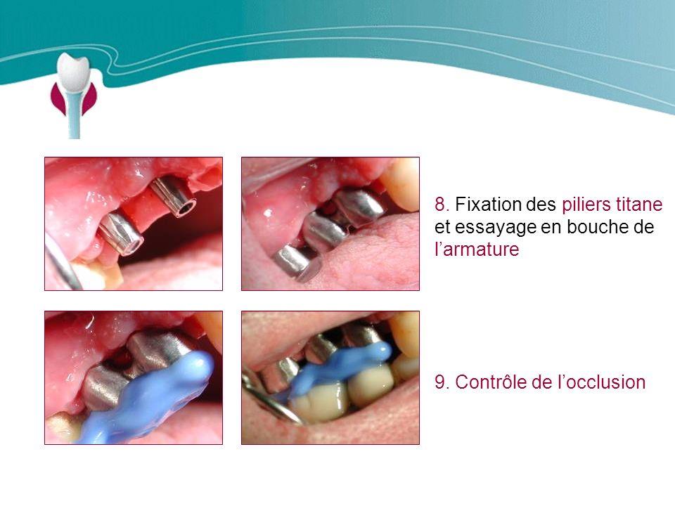 Cas Clinique n°11 8. Fixation des piliers titane et essayage en bouche de l'armature.