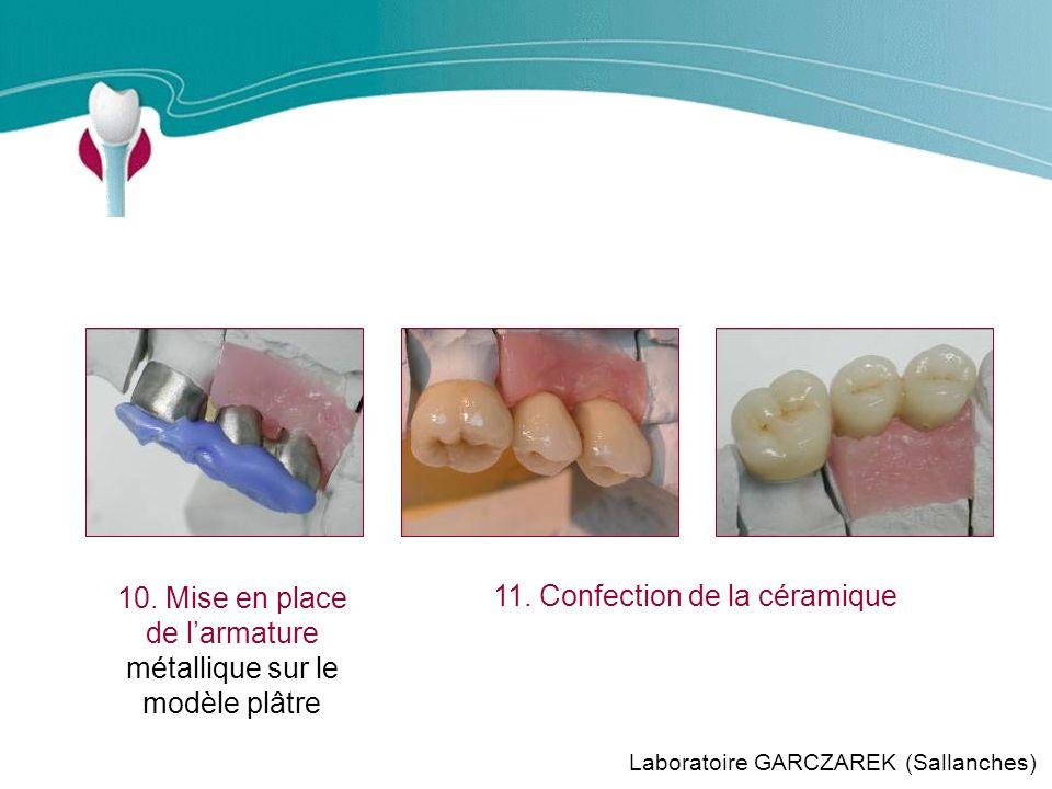 Cas Clinique n°11 10. Mise en place de l'armature métallique sur le modèle plâtre. 11. Confection de la céramique.