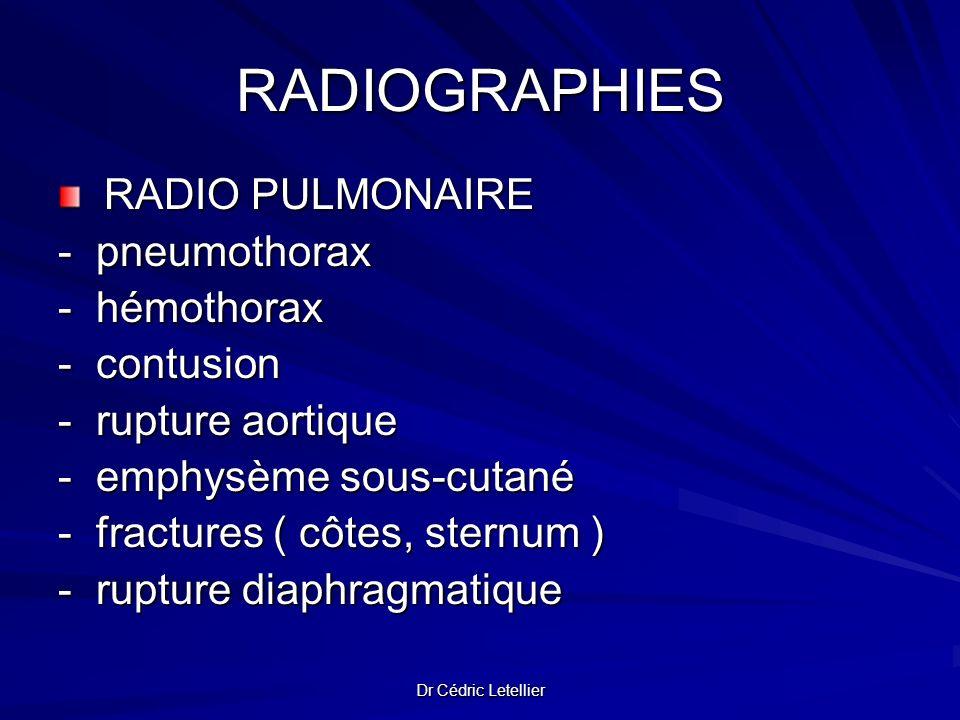 RADIOGRAPHIES - pneumothorax - hémothorax - contusion