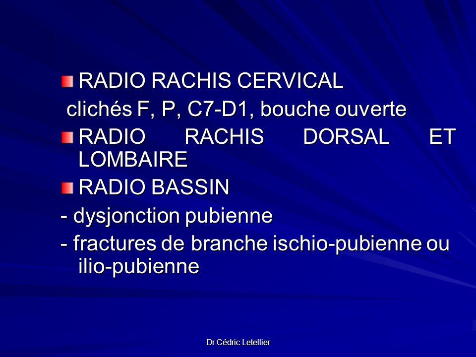 clichés F, P, C7-D1, bouche ouverte RADIO RACHIS DORSAL ET LOMBAIRE