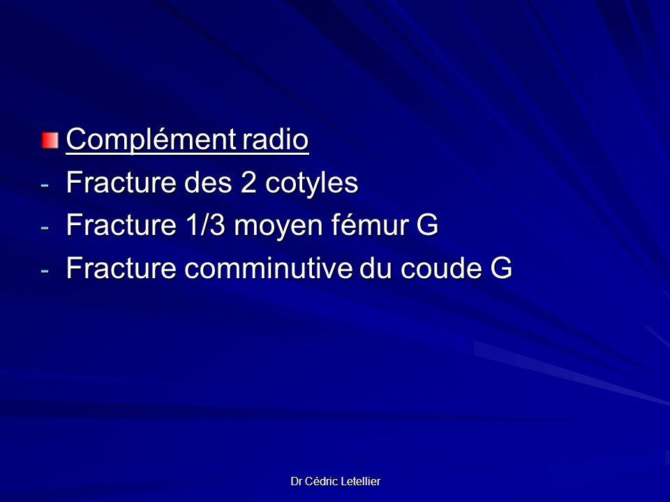 Fracture 1/3 moyen fémur G Fracture comminutive du coude G