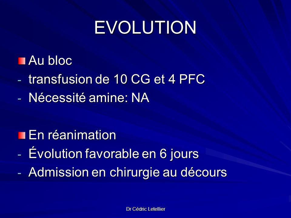 EVOLUTION Au bloc transfusion de 10 CG et 4 PFC Nécessité amine: NA