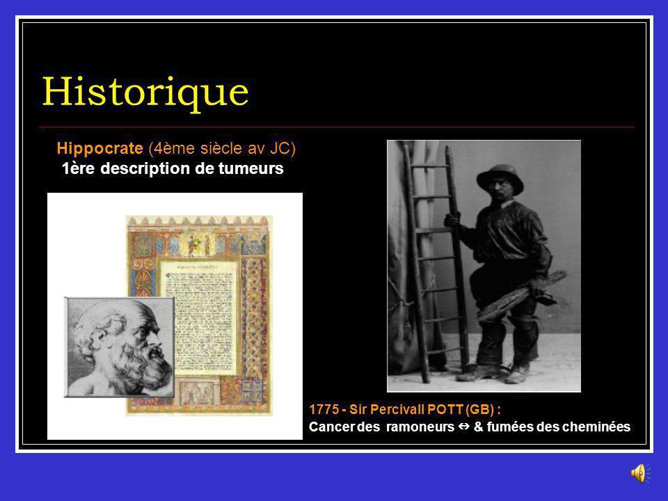 Historique Hippocrate (4ème siècle av JC) 1ère description de tumeurs