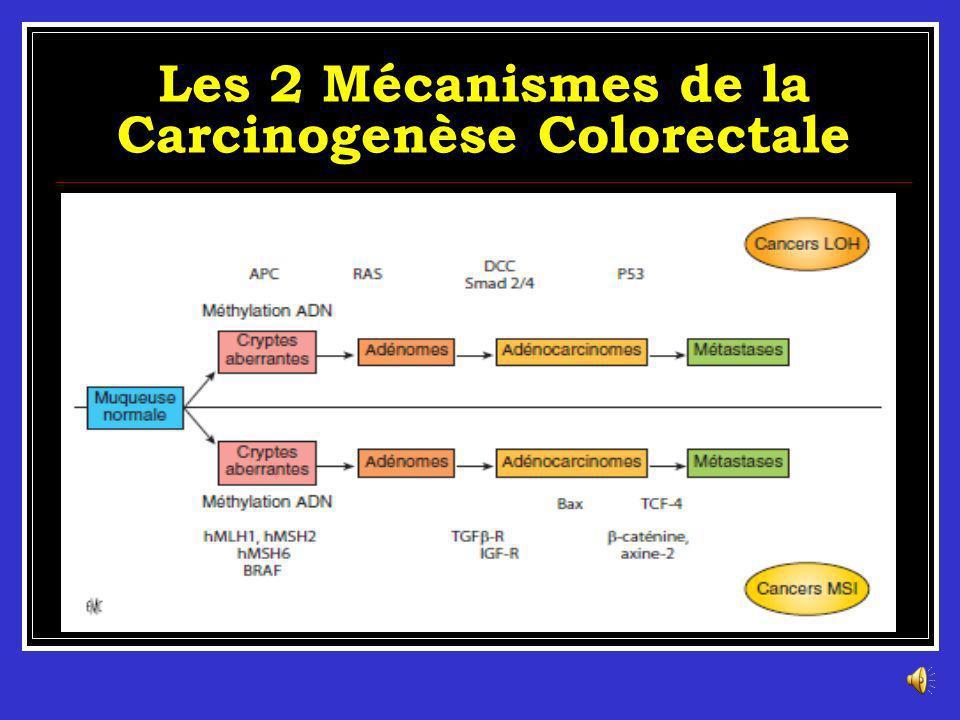 Les 2 Mécanismes de la Carcinogenèse Colorectale