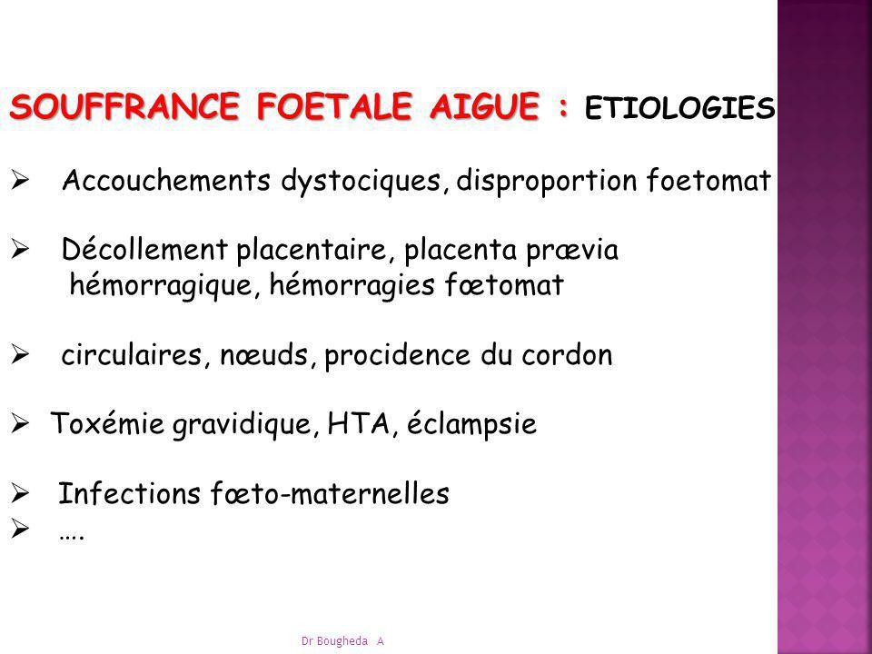 SOUFFRANCE FOETALE AIGUE : ETIOLOGIES