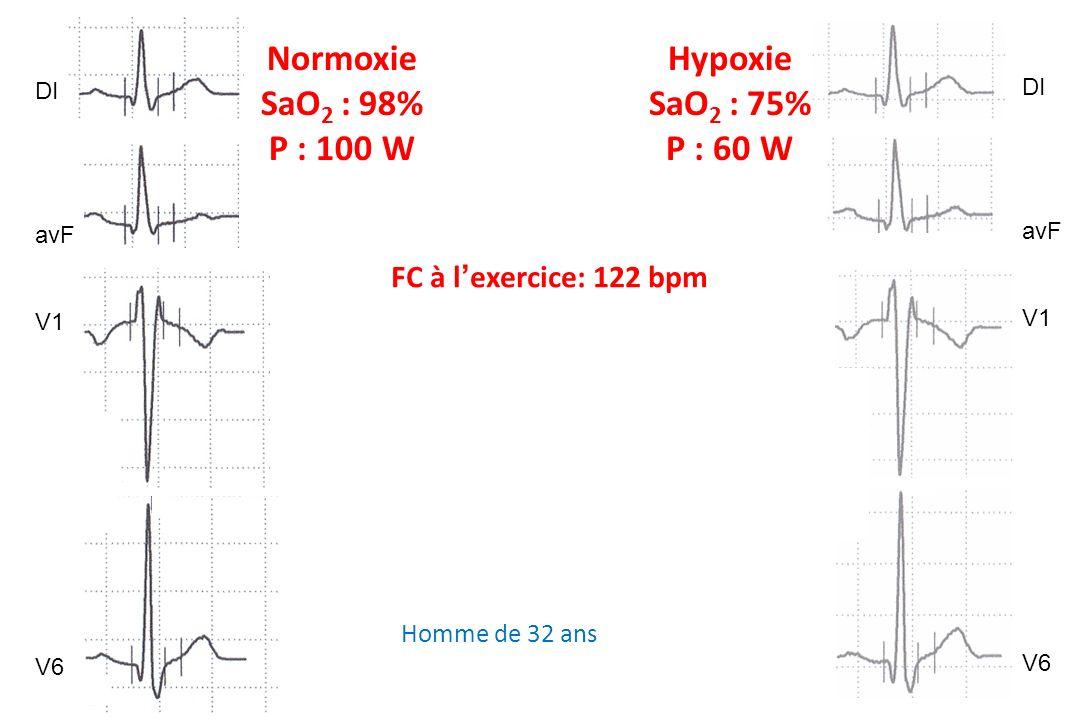 Normoxie SaO2 : 98% P : 100 W Hypoxie SaO2 : 75% P : 60 W