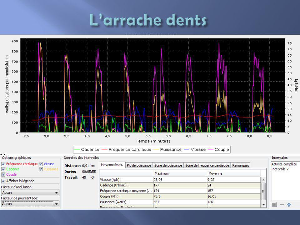 L'arrache dents
