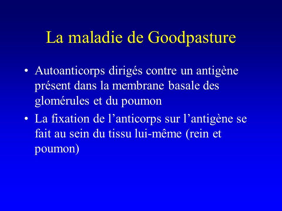 La maladie de Goodpasture