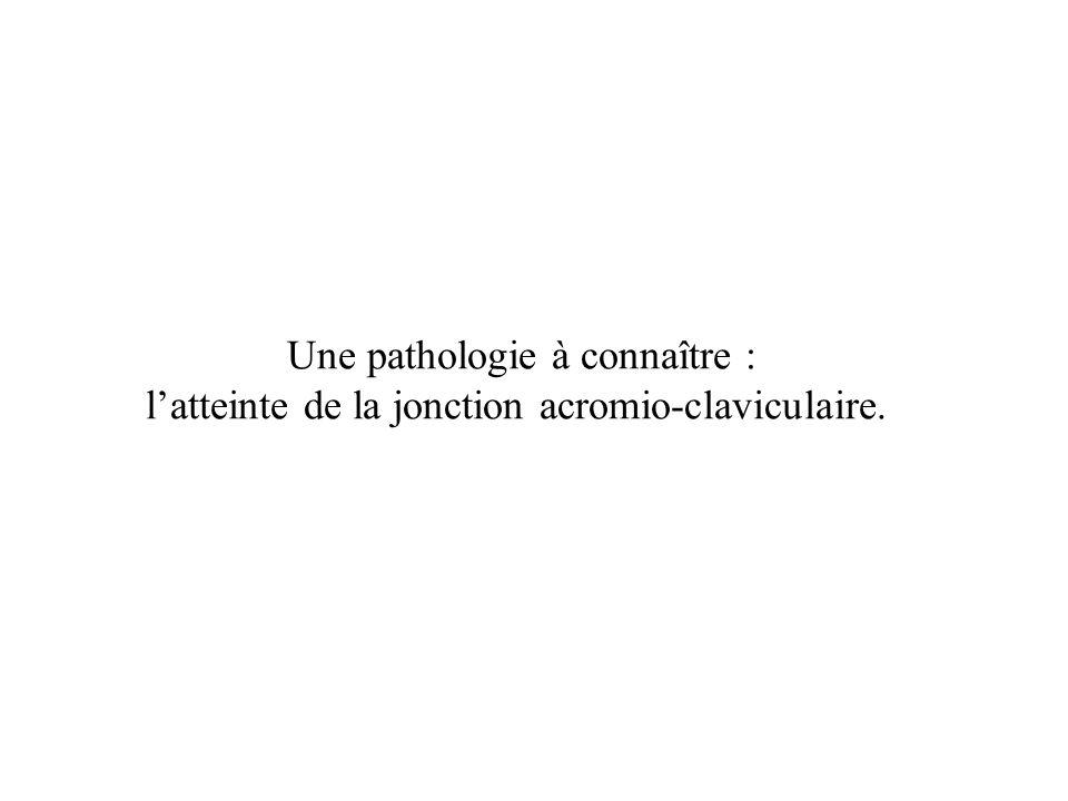 Une pathologie à connaître : l'atteinte de la jonction acromio-claviculaire.