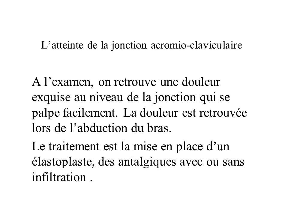 L'atteinte de la jonction acromio-claviculaire