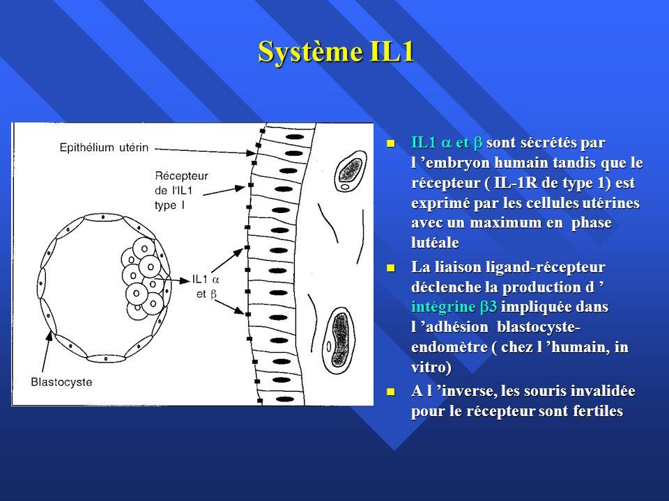 Système IL1