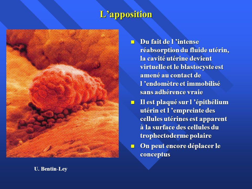 L'apposition