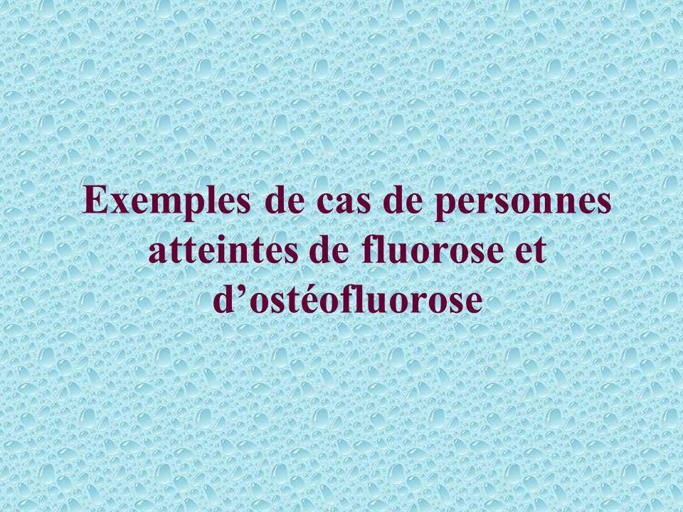 Exemples de cas de personnes atteintes de fluorose et d'ostéofluorose