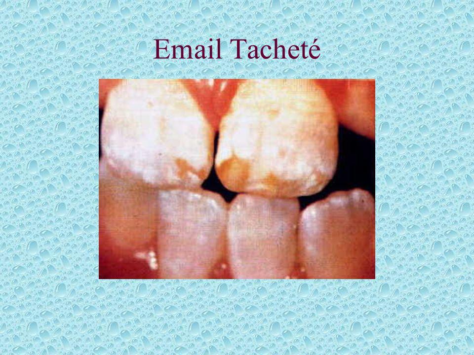 Email Tacheté